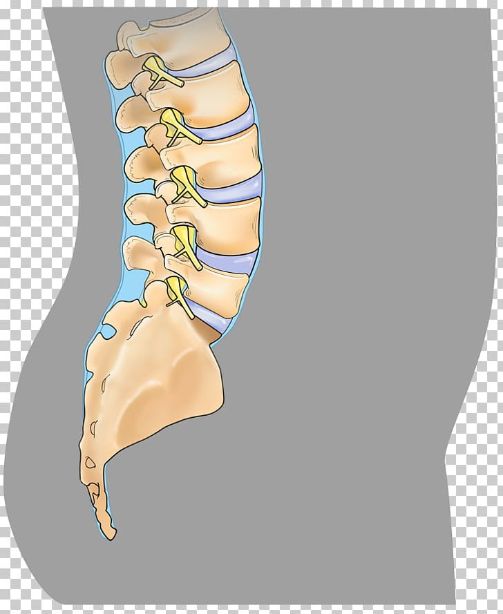Spinal surgery clipart vector freeuse stock Anterior Cervical Discectomy And Fusion Spinal Fusion ... vector freeuse stock