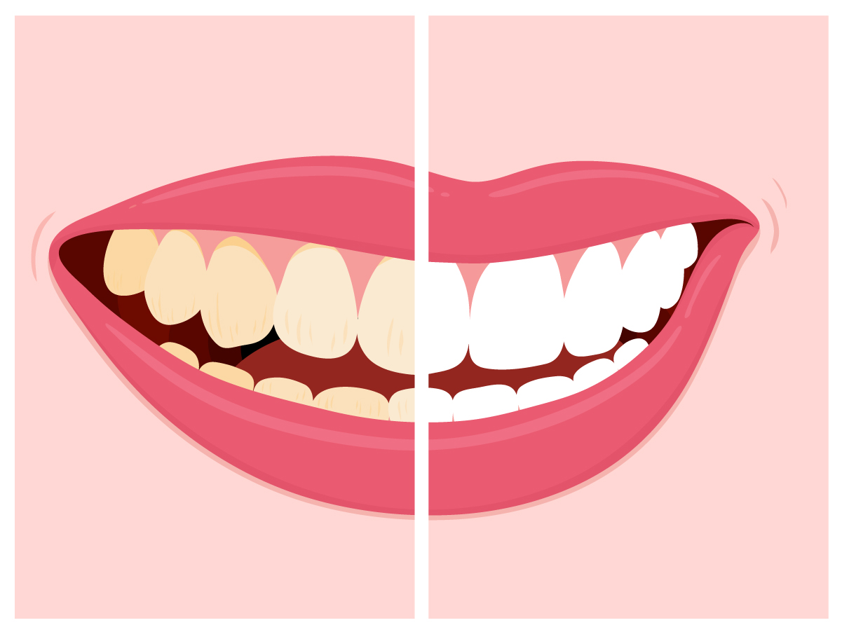 Staining clipart picture free stock Stained Teeth - Forreston Dental picture free stock