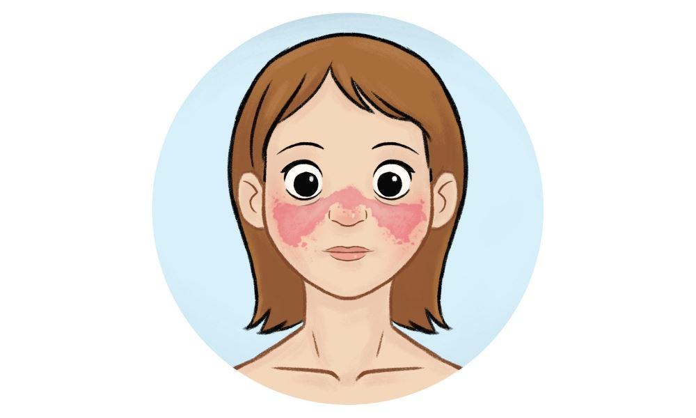 Systemic lupus erythematosus clipart black and white download Lupus - healthand.com black and white download