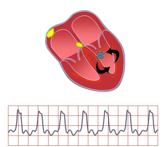 Tachycardia clipart clip art freeuse library Ventricular Tachycardia | EKG\'s for EM Physicians clip art freeuse library