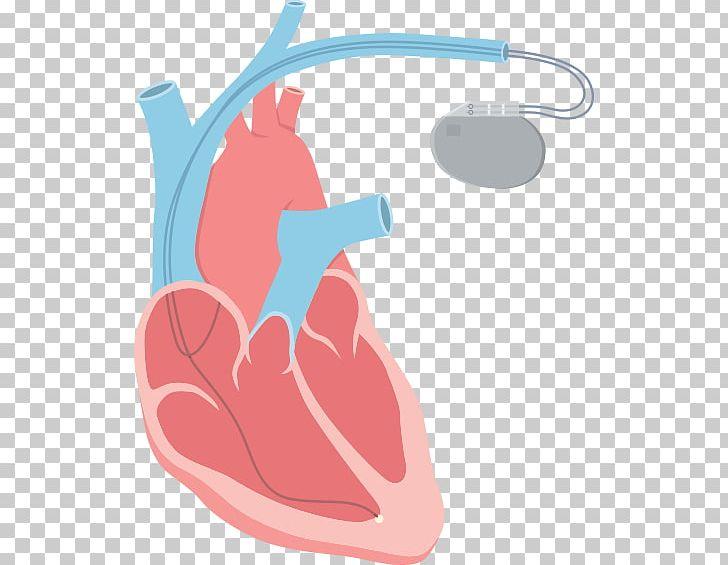 Tachycardia clipart picture library library Heart Arrhythmia Tachycardia Catheter Ablation PNG, Clipart ... picture library library