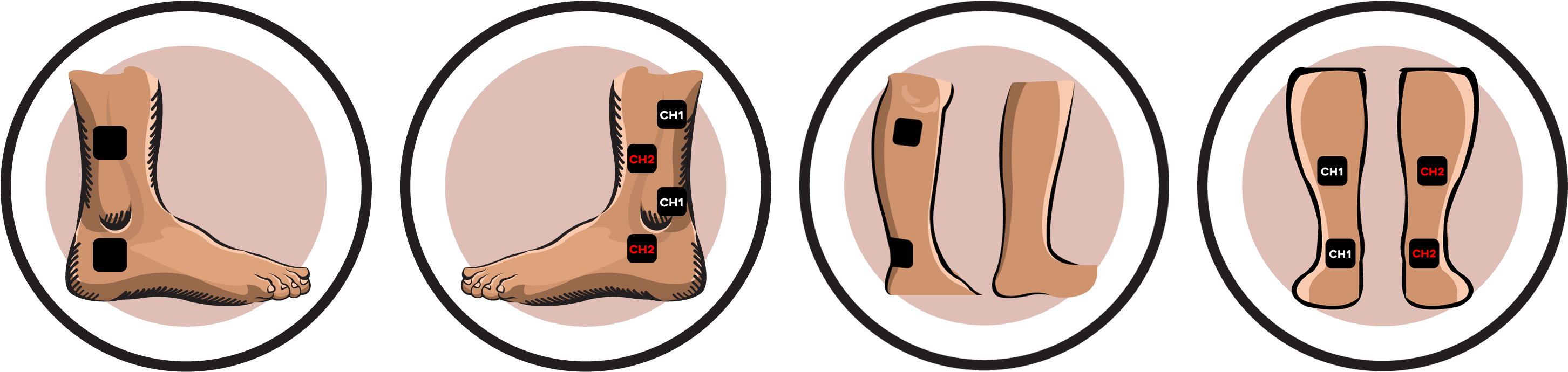 Tens unit clipart graphic free Electrode Pad Placement - Ankle Sprain Tens Unit Clipart ... graphic free