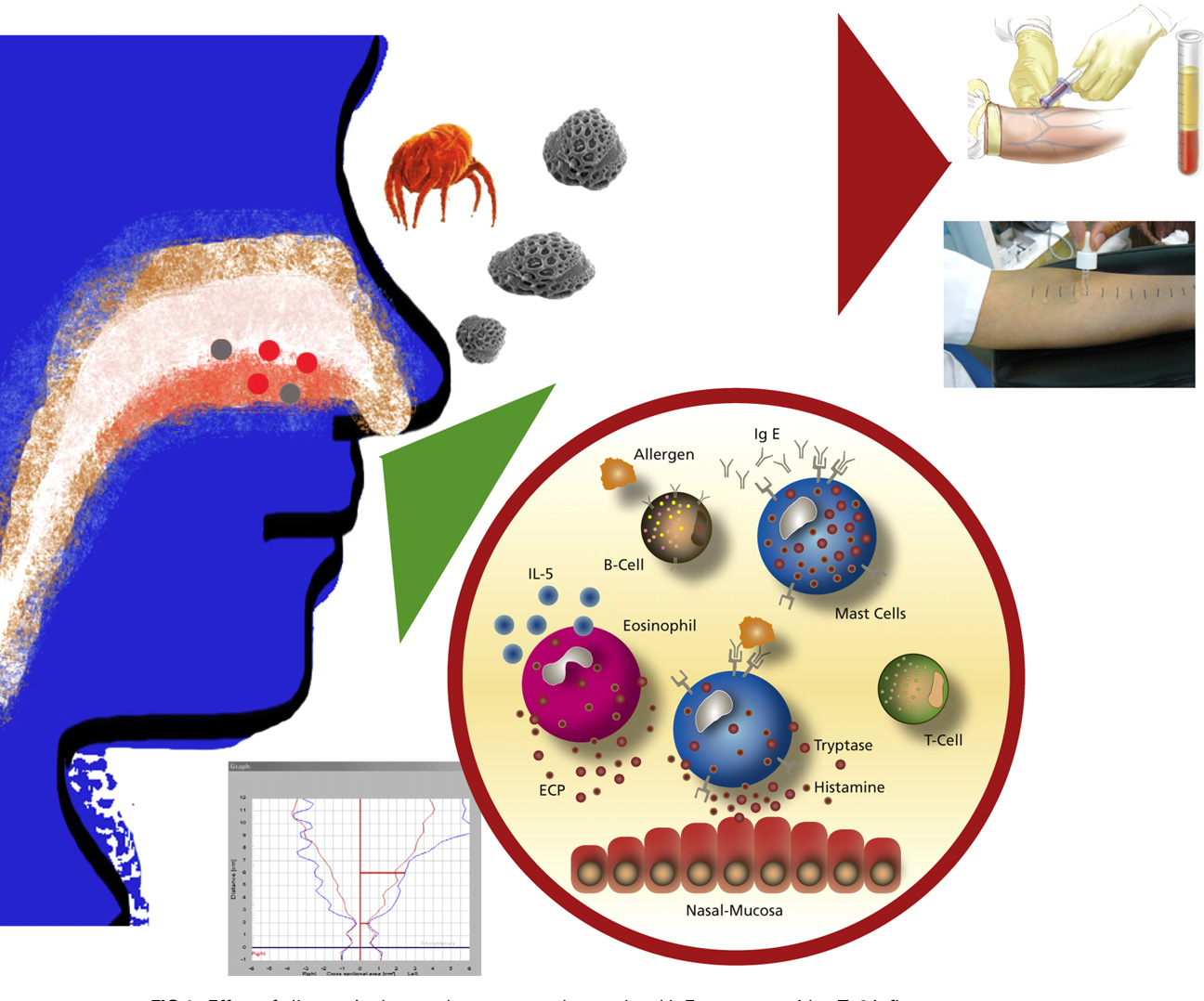 Test for allergic rhinitis clipart svg library Figure 1 from Rostrum Local allergic rhinitis : Concept ... svg library