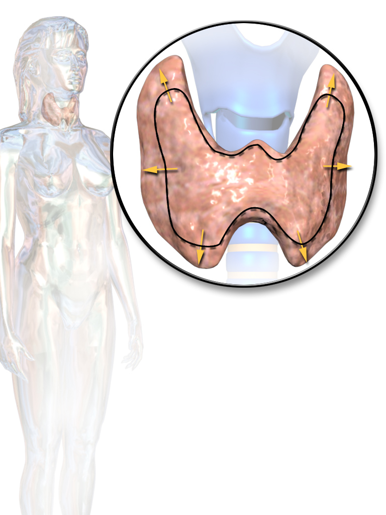 Thyroid disease clipart clipart library stock Thyroid disease - Wikipedia clipart library stock