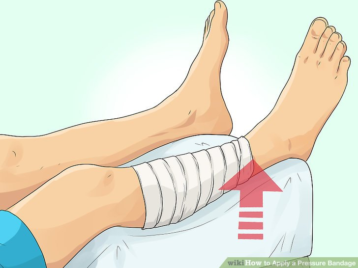 To put on bandage clipart vector library How to Apply a Pressure Bandage (with Pictures) - wikiHow vector library