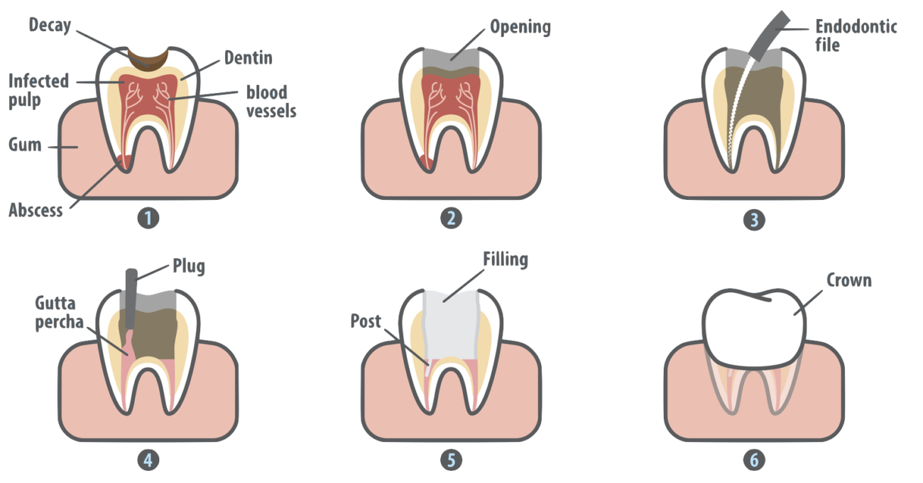 Tooth clipart crown image transparent Root Canal in Marrero LA | What is a Root Canal Procedure image transparent