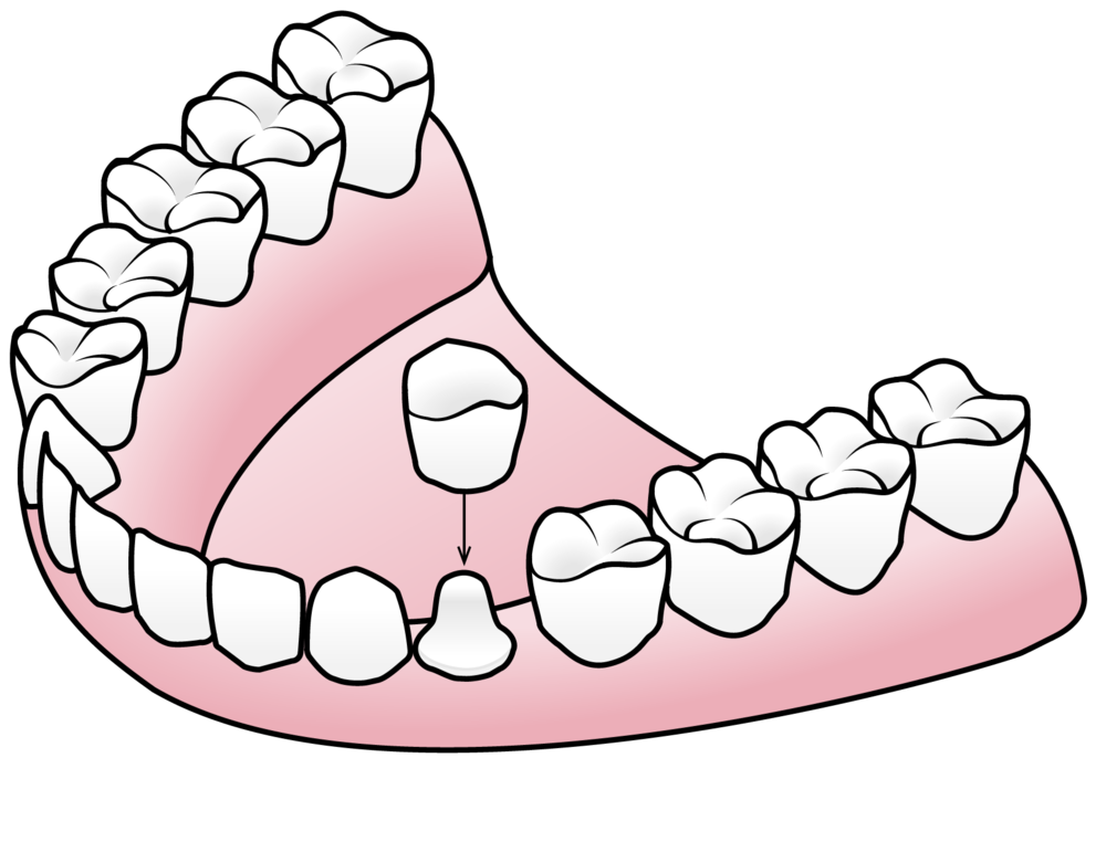 Tooth clipart crown royalty free library Porcelain Crowns — Valley Dental and Orthodontics royalty free library