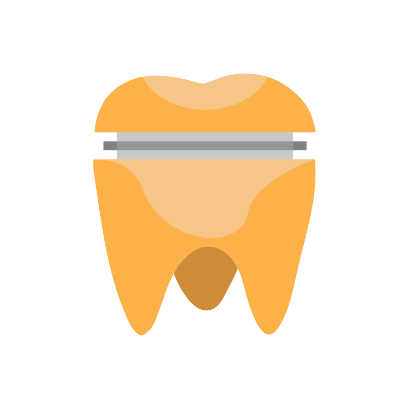 Tooth clipart crown graphic royalty free download Frankfort Smiles Dental | 301 N. White Street, Suite BB, Frankfort ... graphic royalty free download