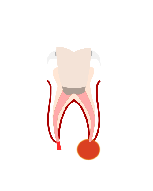 Tooth clipart crown clipart stock Dental Implants East Sheen | Permanent Teeth Richmond | Barnes clipart stock