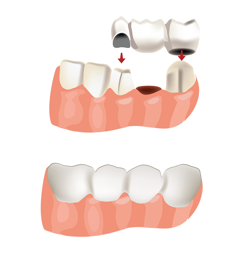 Tooth clipart crown png royalty free library Crowns and Bridges - Kifer Park Dental png royalty free library