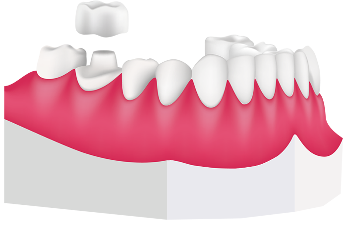 Tooth clipart crown clipart royalty free stock Dental crowns for children | Richmond, London, TW1 | Paediatric dentist clipart royalty free stock