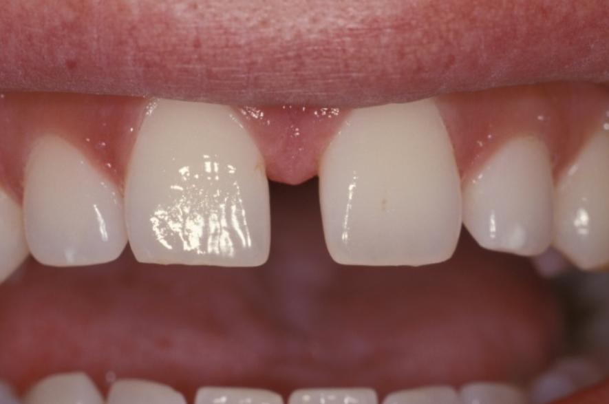 Transparent clipart gap in teeth clip art library library Tooth Gap PNG Transparent Tooth Gap.PNG Images. | PlusPNG clip art library library