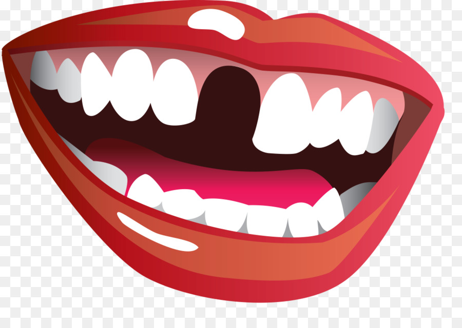 Transparent clipart gap in teeth vector black and white Missing Tooth Png & Free Missing Tooth.png Transparent ... vector black and white