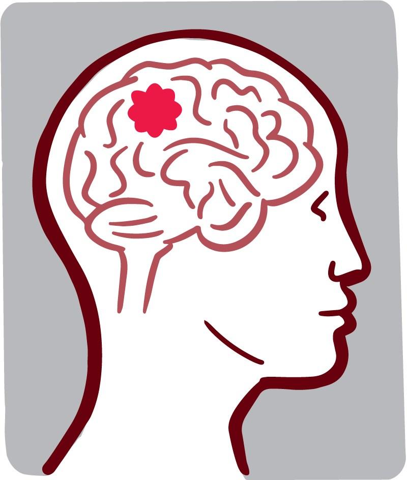 Tumor clipart image freeuse Brain tumor clipart 8 » Clipart Portal image freeuse