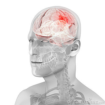 Tumor clipart royalty free download Highlighted Brain Tumor | Clipart Panda - Free Clipart Images royalty free download