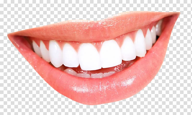 White teeth clipart picture royalty free White teeth , Smile Tooth whitening Mouth, Teeth transparent ... picture royalty free