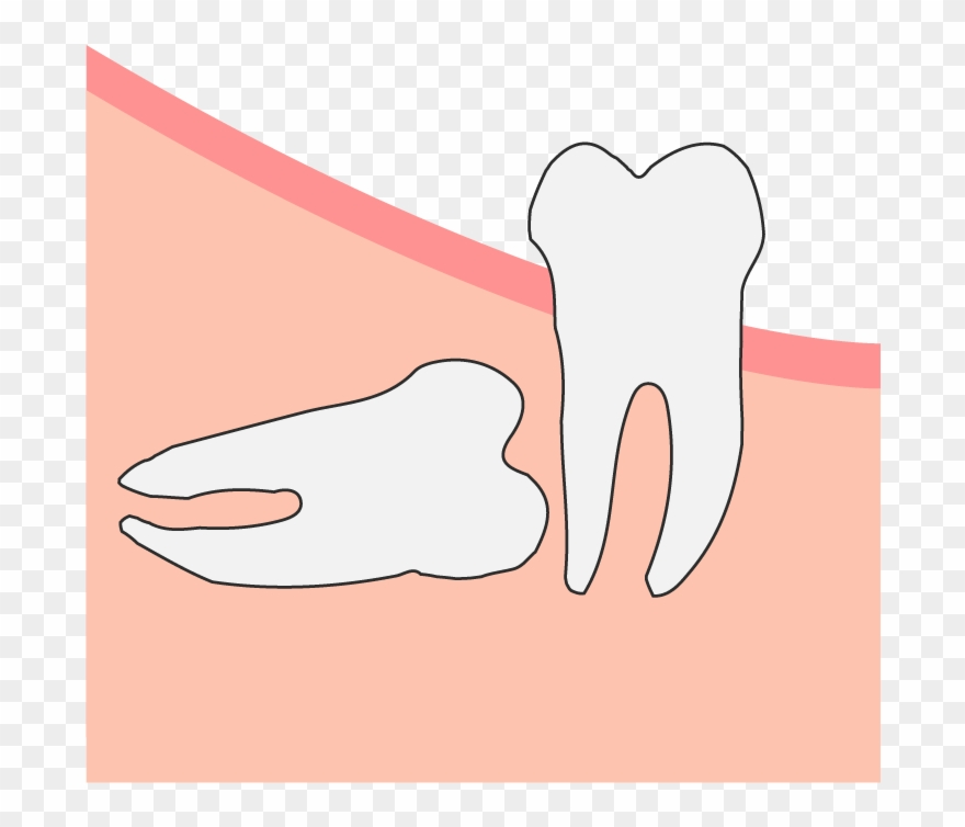 Wisdom tooth clipart banner freeuse download Horizontal Wisdom Tooth Impaction Clipart (#1507087 ... banner freeuse download