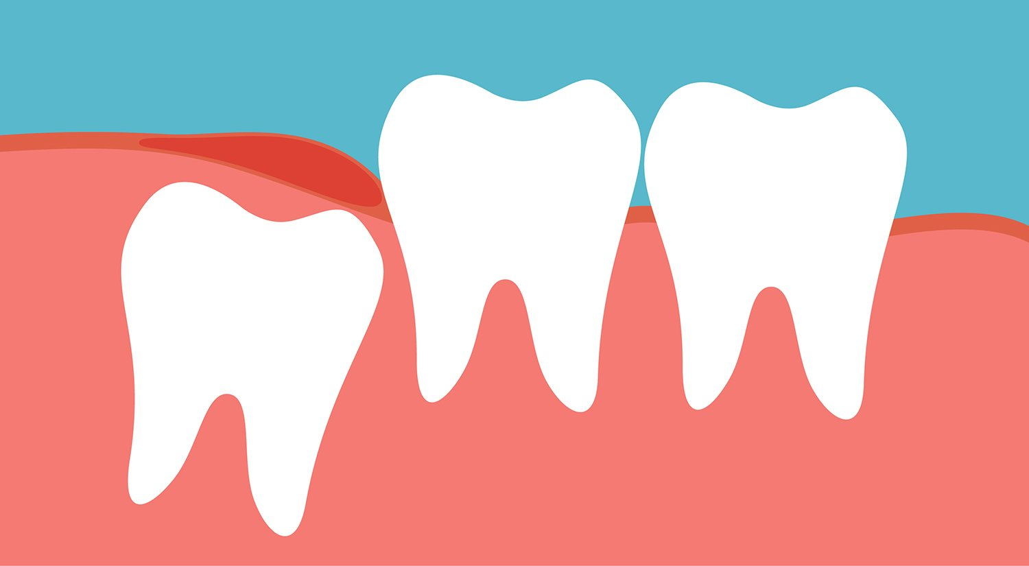 Wisdom tooth clipart clip art transparent download Wisdom Teeth Coming In? What You Need to Know clip art transparent download