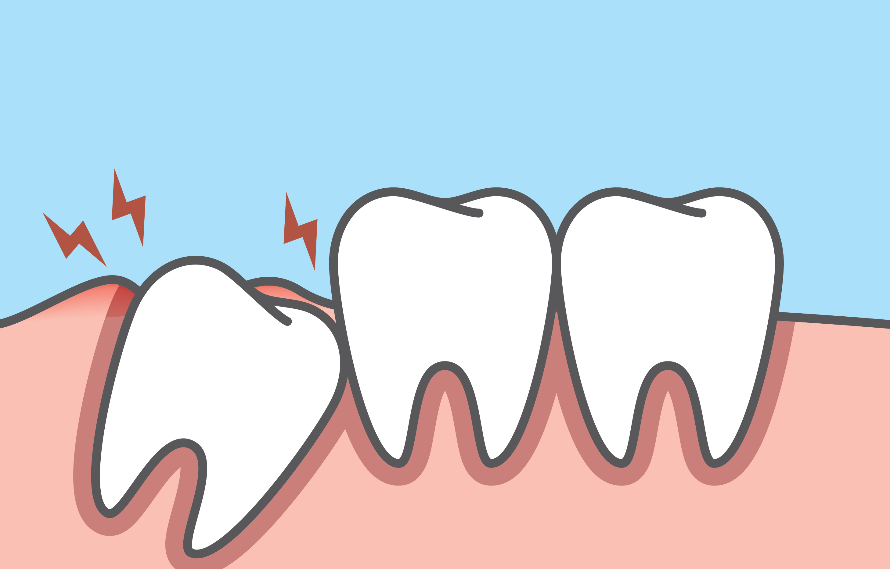 Wisdom tooth clipart banner free Wisdom Teeth: What You Need To Know - Singapore Dental Clinics banner free