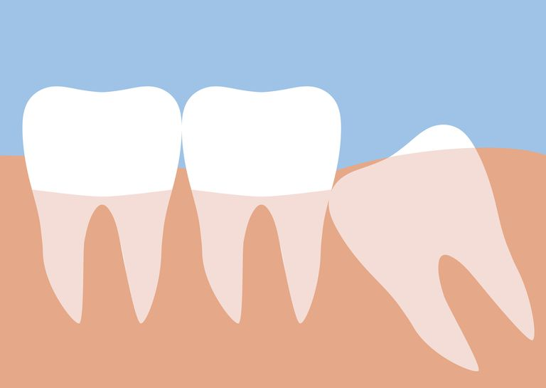 Wisdom tooth clipart graphic free stock Why Do Humans Get Wisdom Teeth? graphic free stock