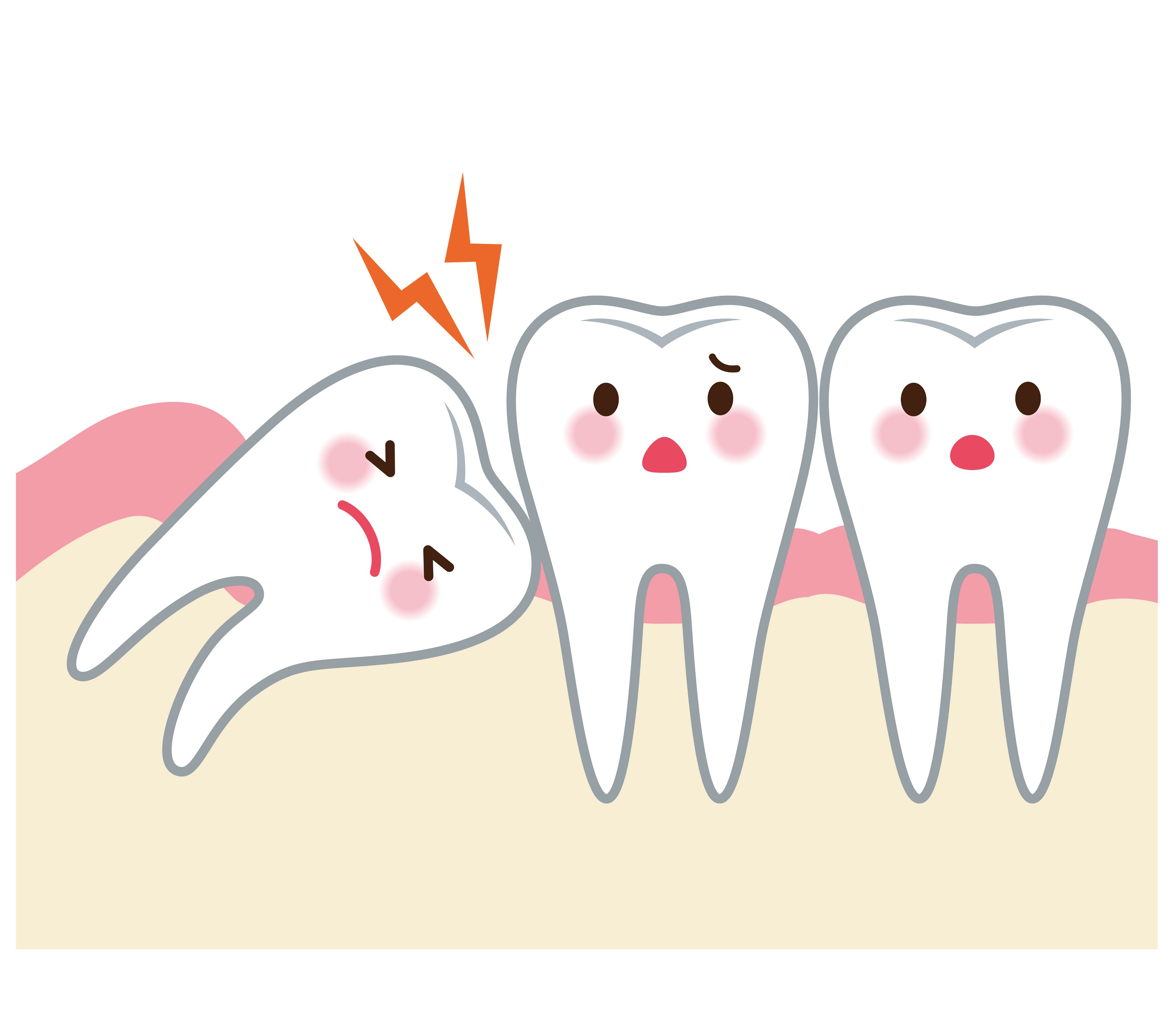 Wisdom tooth clipart clipart library download All you need to know about wisdom tooth extraction - Medikoe ... clipart library download