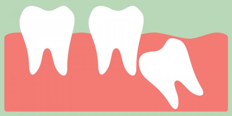 Wisdom tooth clipart