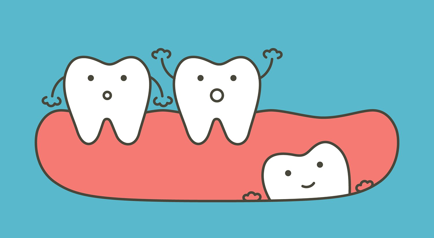 Wisdom tooth clipart png black and white Wisdom Teeth Removal: Know Before You Go - Ask the Dentist png black and white