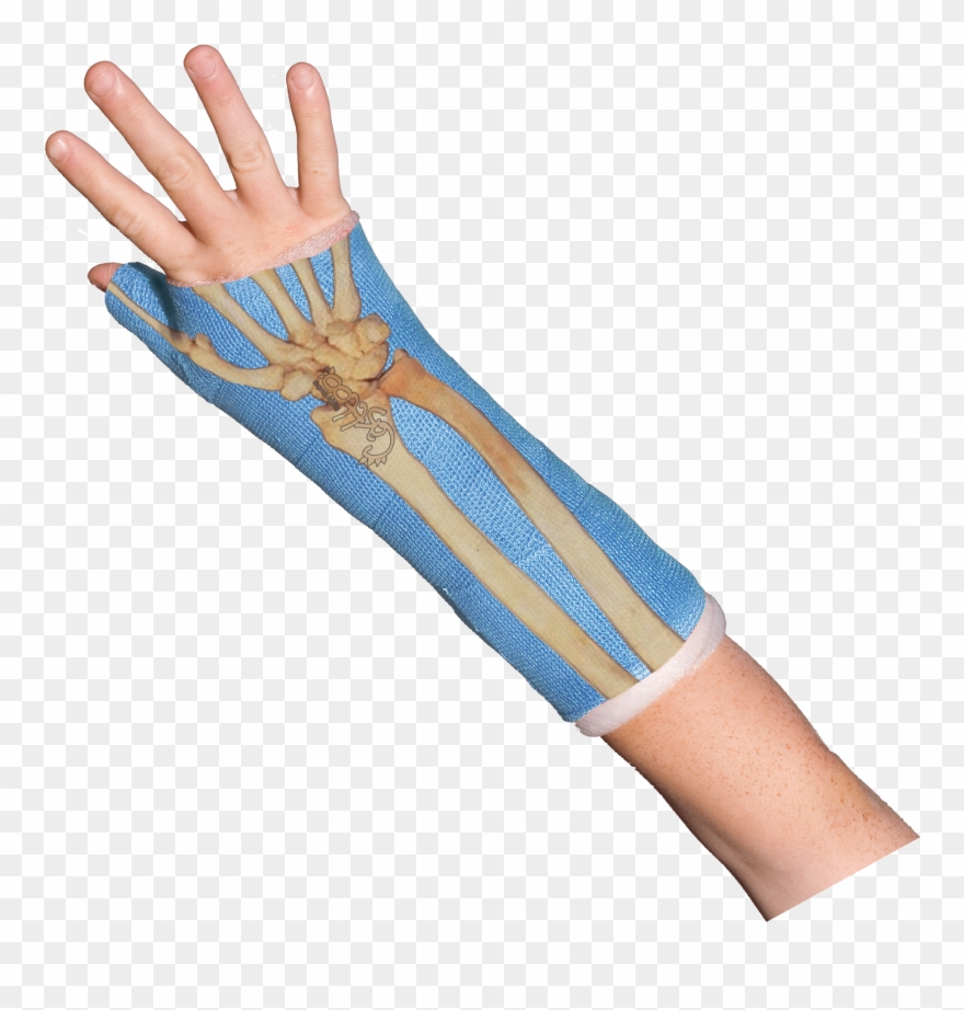 Wrist cast clipart graphic free stock Bones Wrist Bones Casttoo Orthopedic Cast Tattoos Gif ... graphic free stock