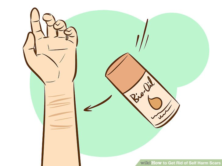 Wrist cutting clipart svg 6 Ways to Get Rid of Self Harm Scars - wikiHow svg