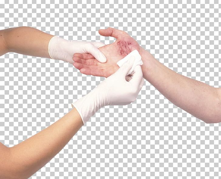 Wrist cutting clipart picture library stock Wound Dressing Arm Bandage Cutting PNG, Clipart, Bleeding ... picture library stock