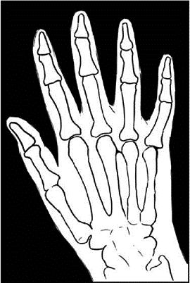 X ray drawing clipart image black and white Free Hand X-ray Cliparts, Download Free Clip Art, Free Clip ... image black and white