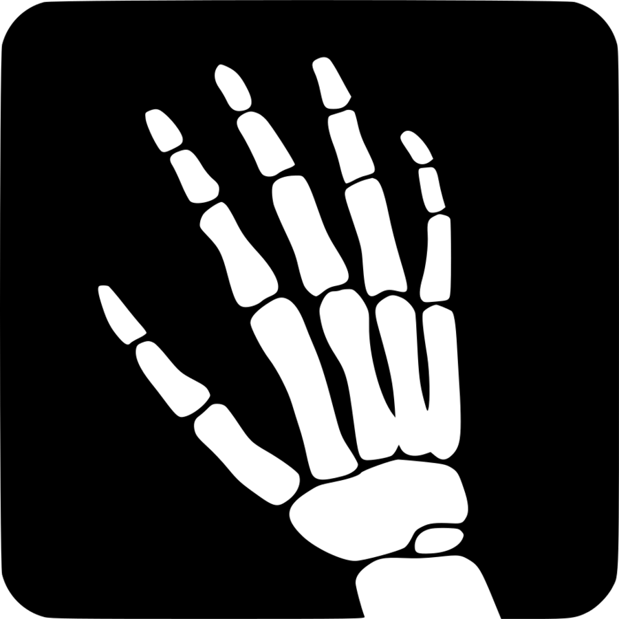 Xray clipart royalty free library Medicine Cartoon clipart - Hand, Finger, Line, transparent ... royalty free library